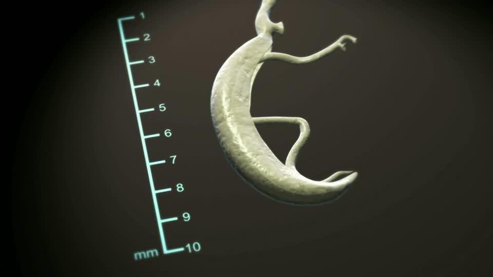 Trematoda Parasitic Worm Schistosoma Mansoni Computer
