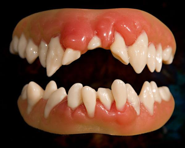 Free False Teeth Cliparts Download Free Clip Art Free